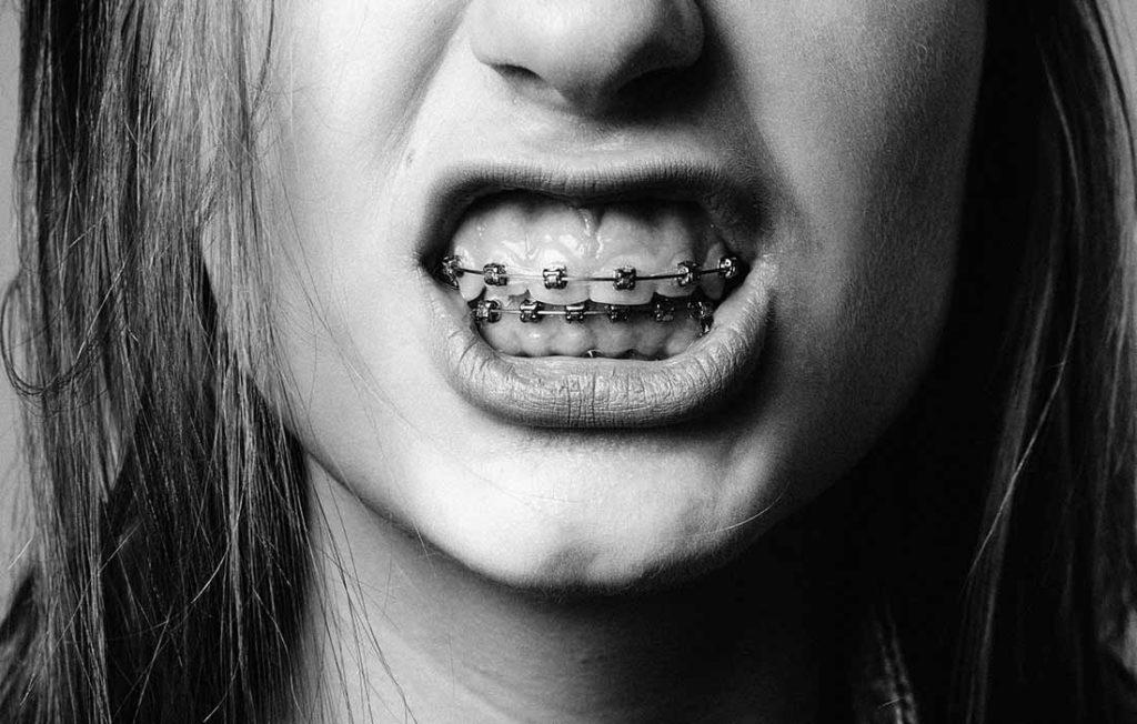 Как будут выглядеть ваши зубы через 10 лет после булимии?